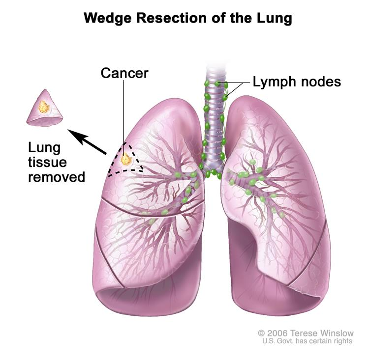 Wedge resection of the lung; shows trachea and lungs with cancer in a lung lobe.  The removed lung tissue with the cancer and small amount of healthy tissue around it is shown next to the lung lobe it was removed from.